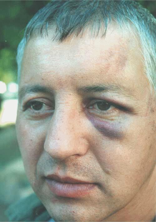 К лидеру пикета, Дмитрию Калитвенцеву приблизился омоновец со словами: «Не бойся, отец, тебя не ударим»